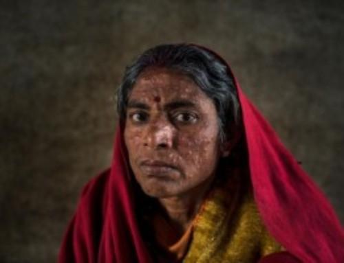Oggi la Giornata delle Malattie Dimenticate: 1,7 miliardi le persone colpite