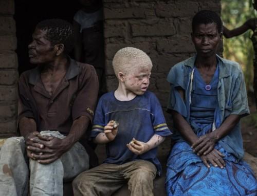 Albini: ancora oggetto di discriminazioni e di crimini